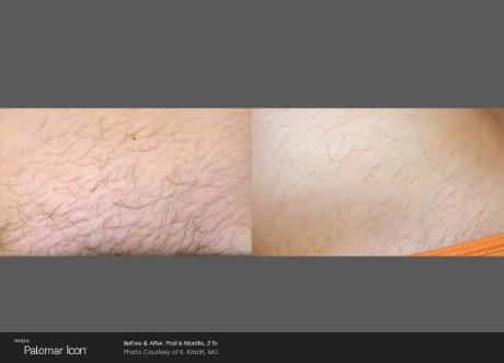 ICON Before and After   Hair Removal - Armpit