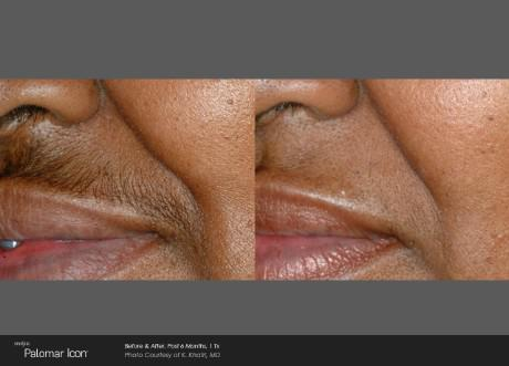 ICON Before and After   Hair Removal - Upper Lip