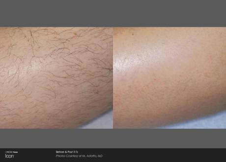 ICON Before and After   Hair Removal - Leg