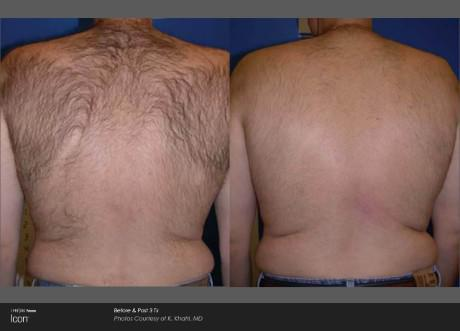 ICON Before and After   Hair Removal - Back