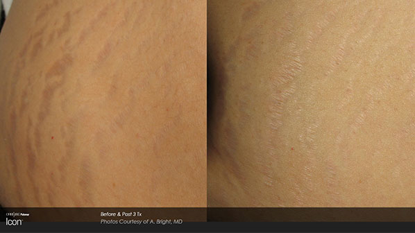 ICON Before and After   Stretch Marks