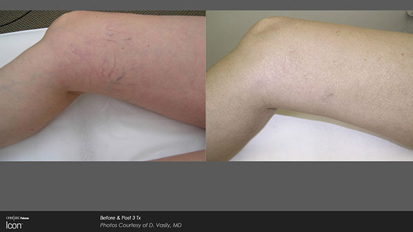 ICON Before and After   Veins