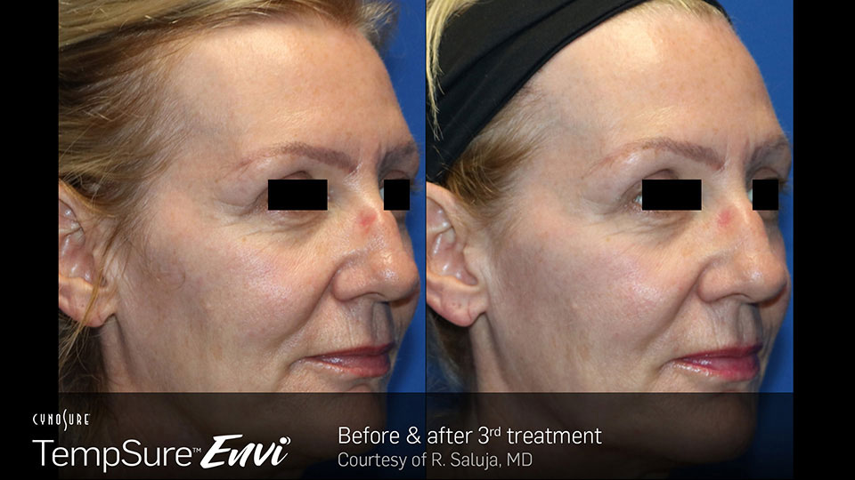 TempSure Envi Before and After | Face