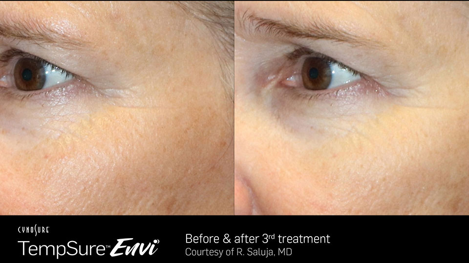 TempSure Envi Before and After | Eye Area