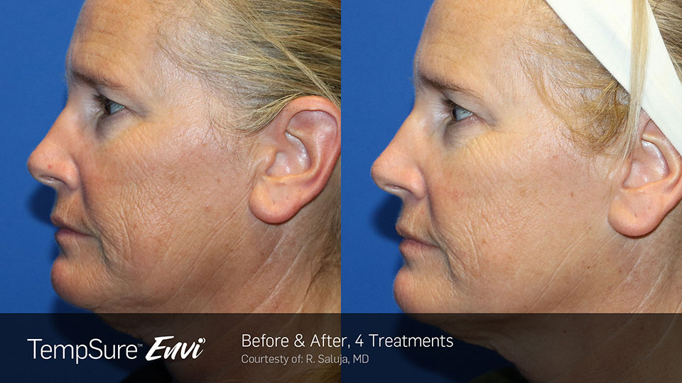 TempSure Envi Before and After | Face Side Profile